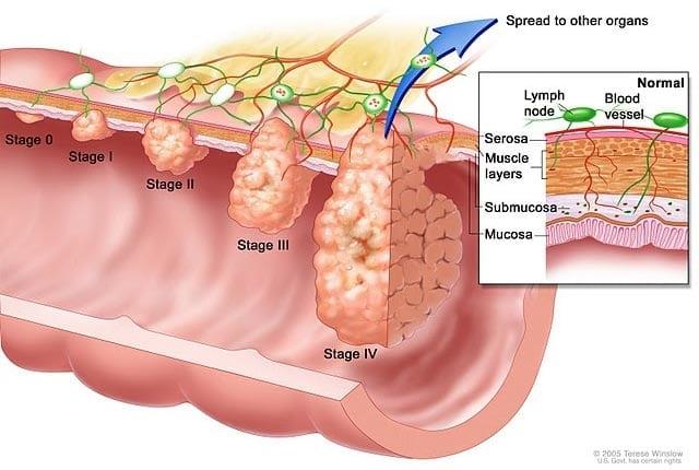 stages-of-bladder-cancer